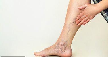 أسباب وعوامل تزيد من خطر الإصابة بدوالى الساقين